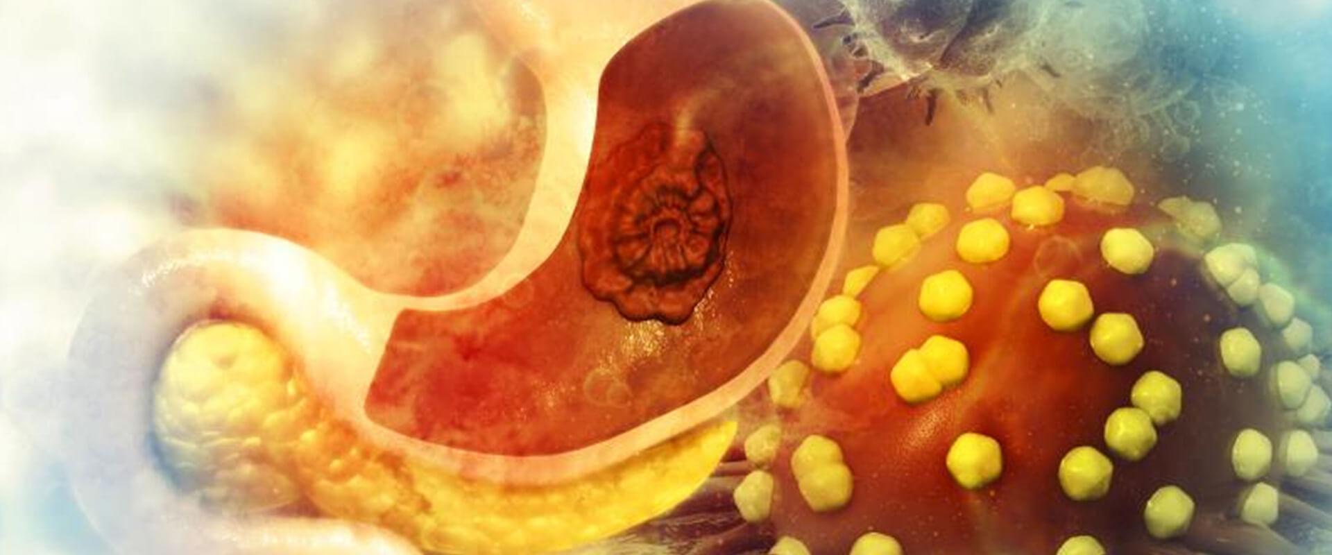 Câncer de estômago - Dr. Valter Alvarenga