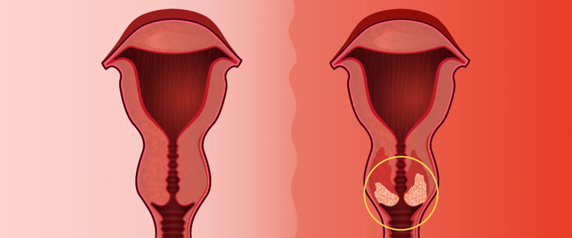 Colo de colo uterino - Dr. Valter Alvarenga