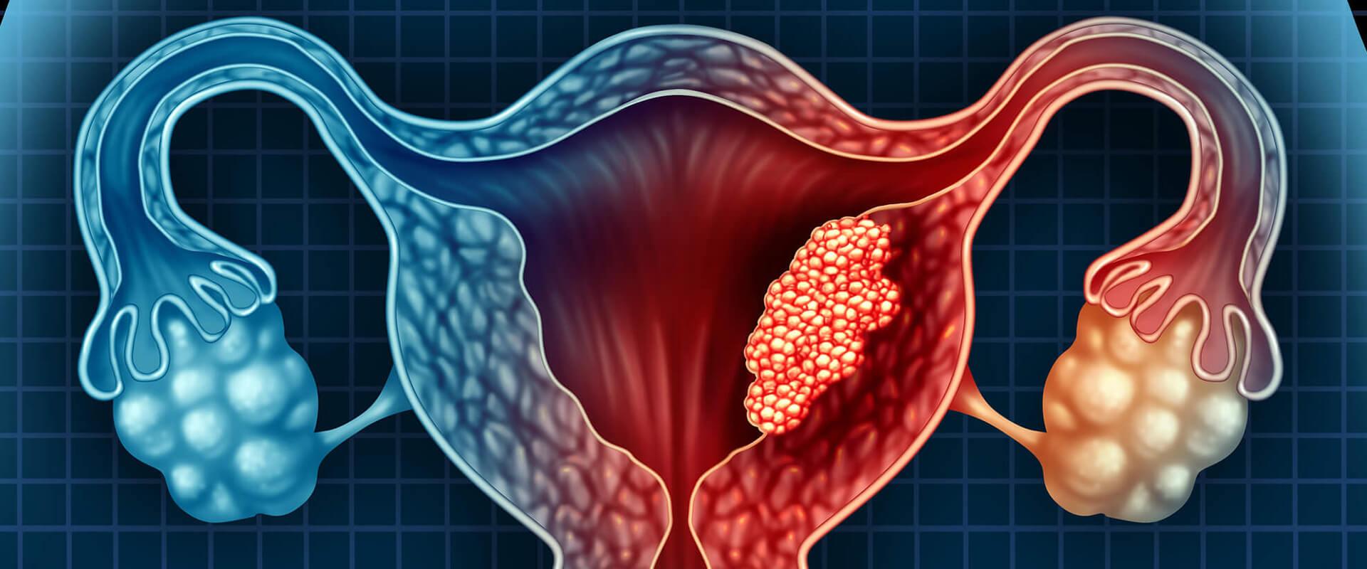 Câncer de endométrio - Dr. Valter Alvarenga