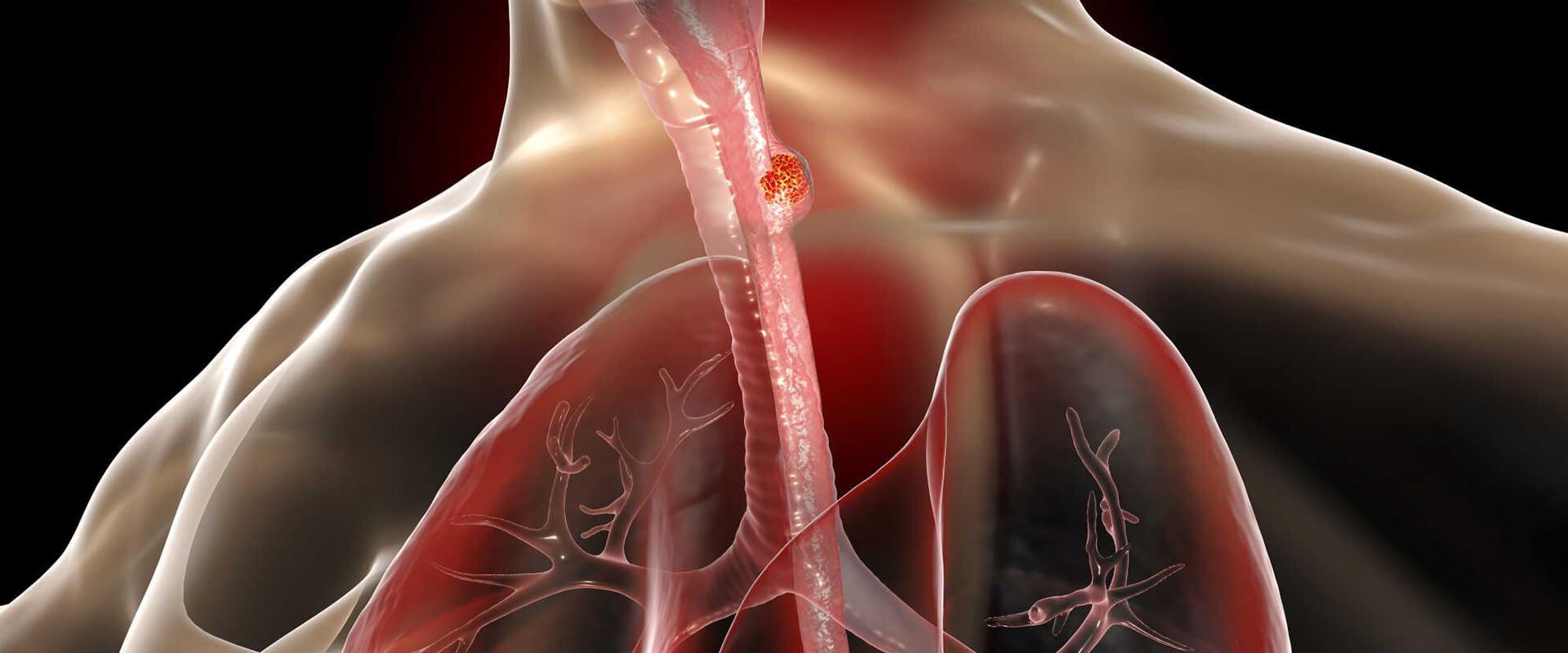 Câncer de esôfago - Dr. Valter Alvarenga