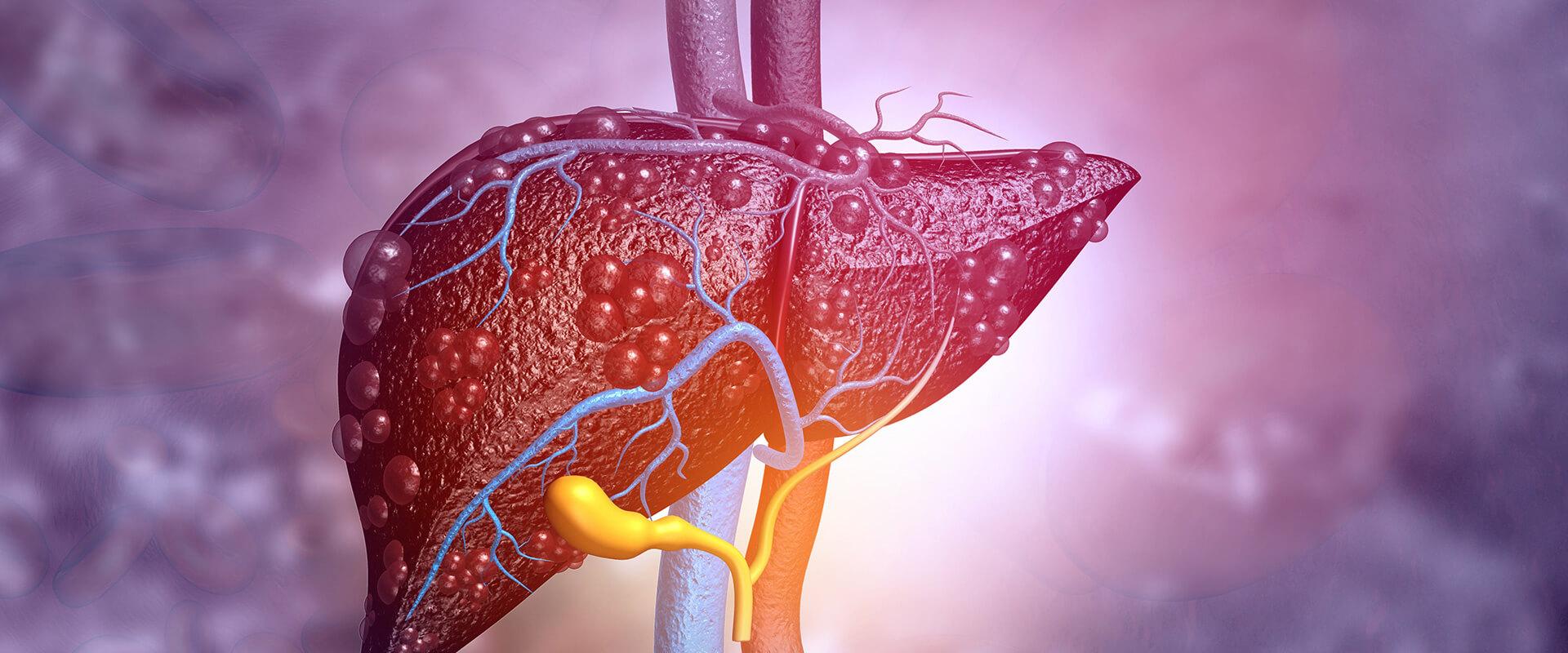 Câncer de fígado e vias biliares - Dr. Valter Alvarenga