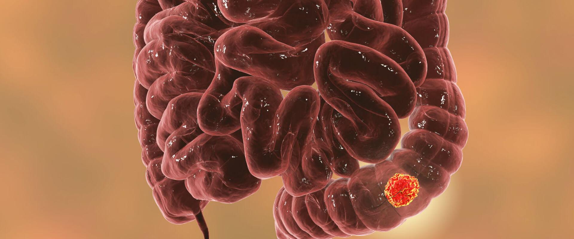 Câncer de intestino grosso e reto