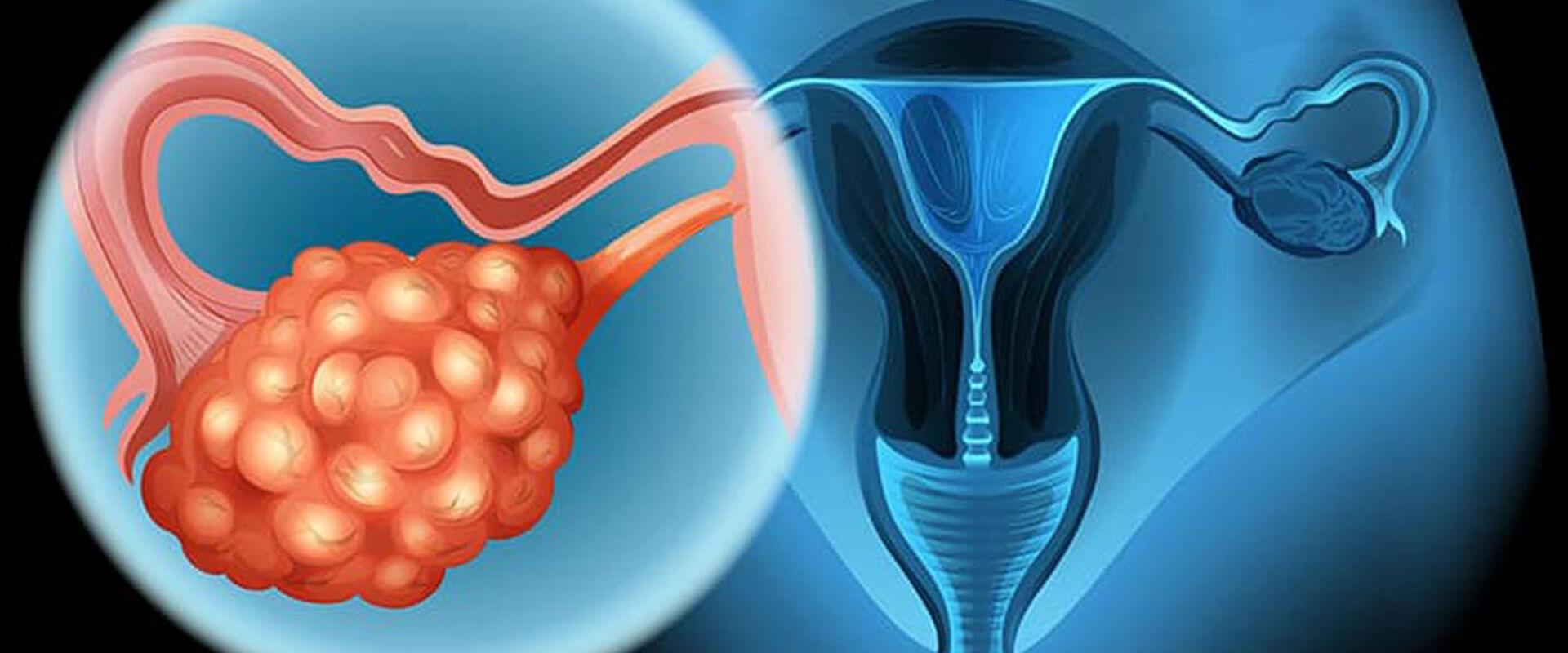 Câncer de ovário - Dr. Valter Alvarenga
