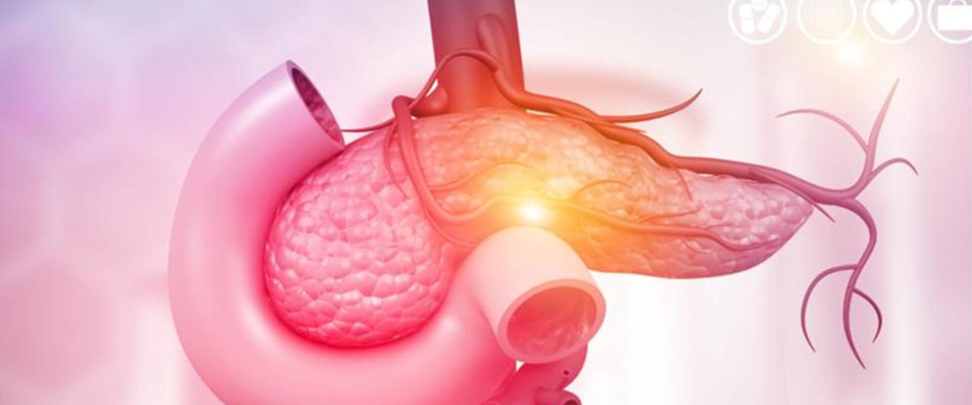 Câncer de pâncreas - Dr. Valter Alvarenga