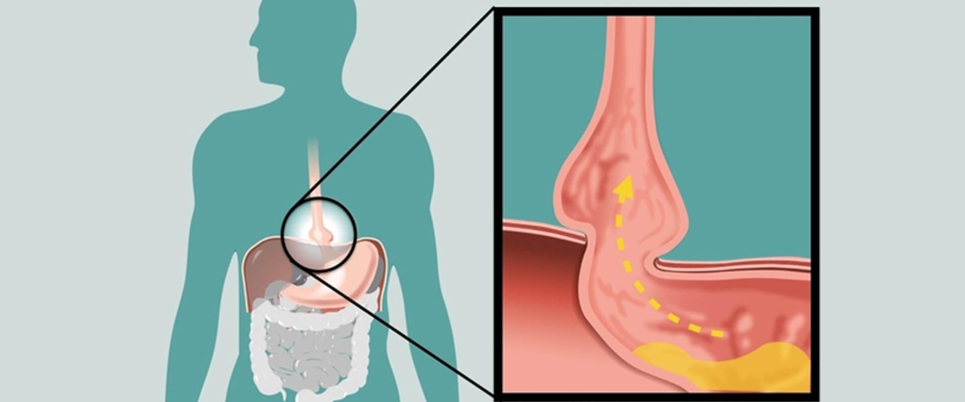 Hérnia de hiato e doença do refluxo - Dr. Valter Alvarenga