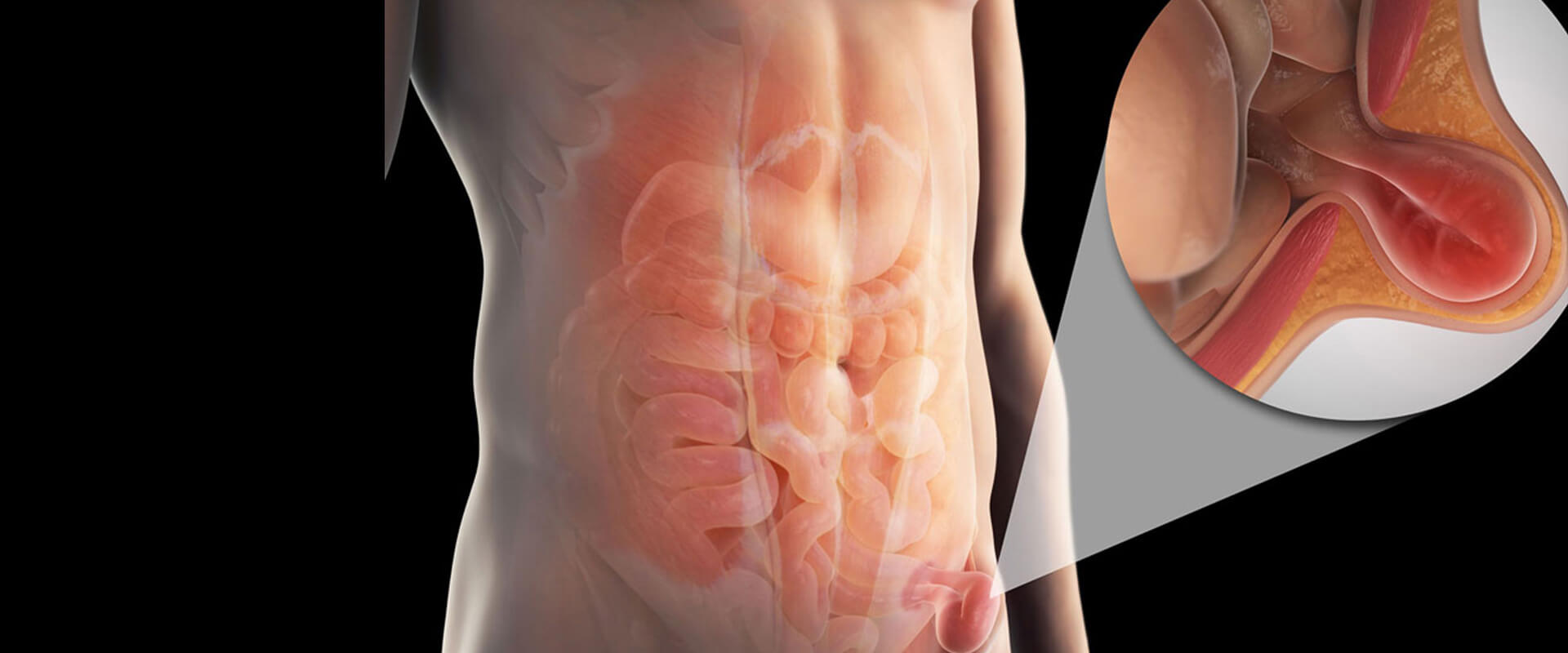 Hérnias de parede abdominal - Dr. Valter Alvarenga