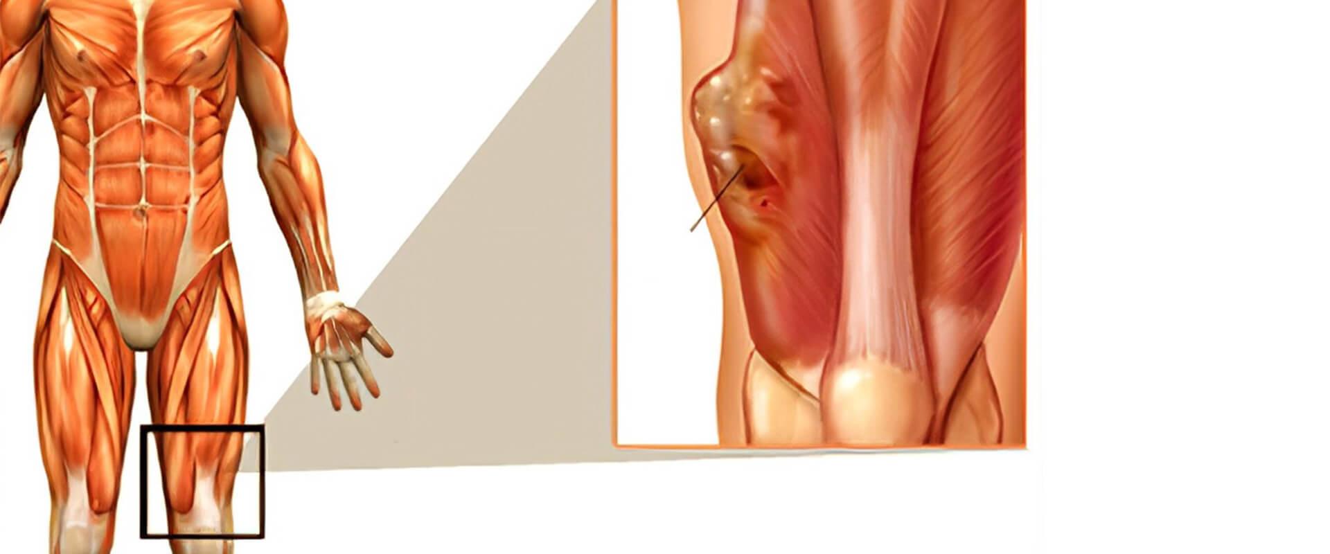 Sarcomas de partes moles e retroperiônio - Dr. Valter Alvarenga